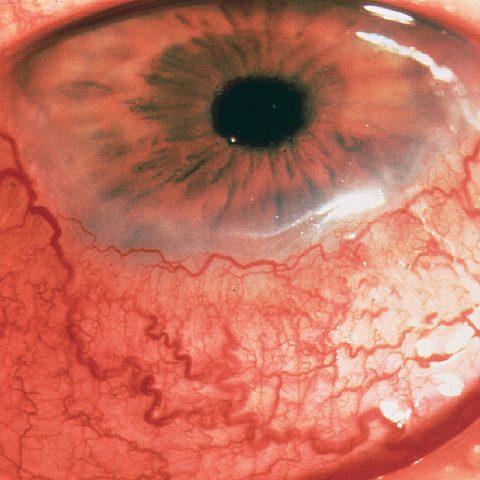 Les affections de l'oeil