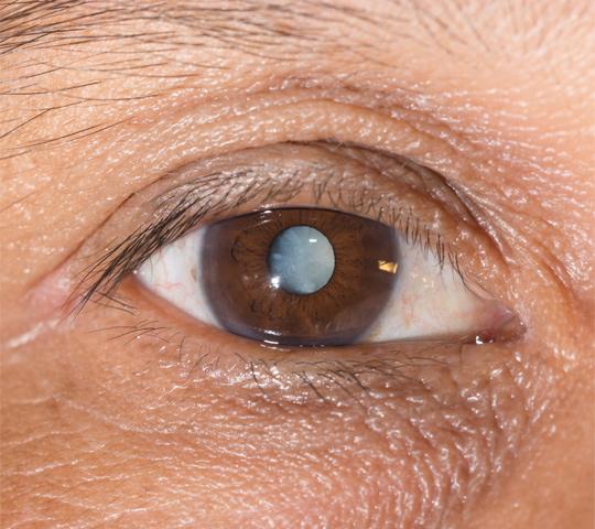 La cataracte chez l'enfant : c'est possible | Educatout